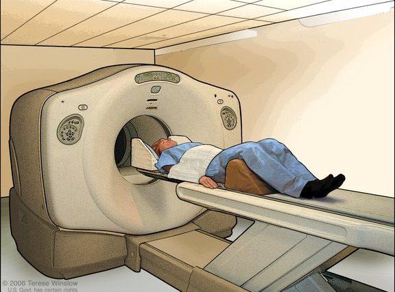 """Pesquisa analisa """"alimentar"""" células cancerígenas e monitorá-las com PET/CT"""