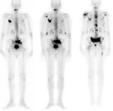 SP: curso de Terapia em Medicina Nuclear acontece dias 7 e 8